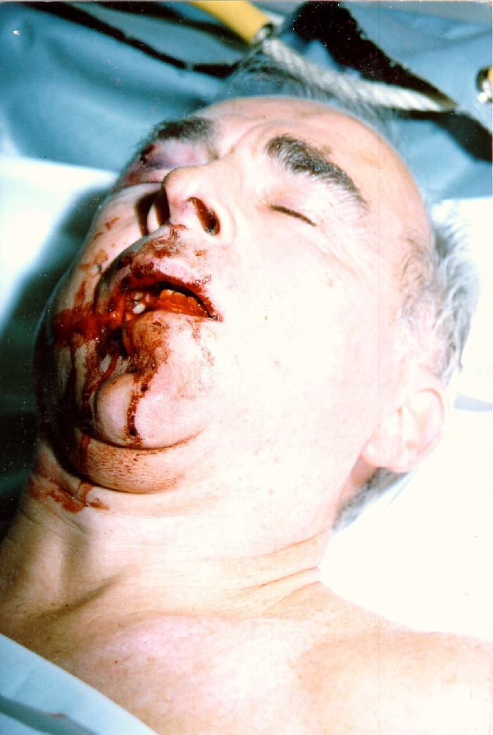 Robert Faurisson severely beaten