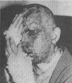 Michel Caignet, following the brutal 1981 attack against him